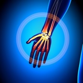 Arm Pain Graphic Joint Medic New Jersey Pain Relief