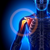 Shoulder Pain Graphic Joint Medic New Jersey Pain Relief
